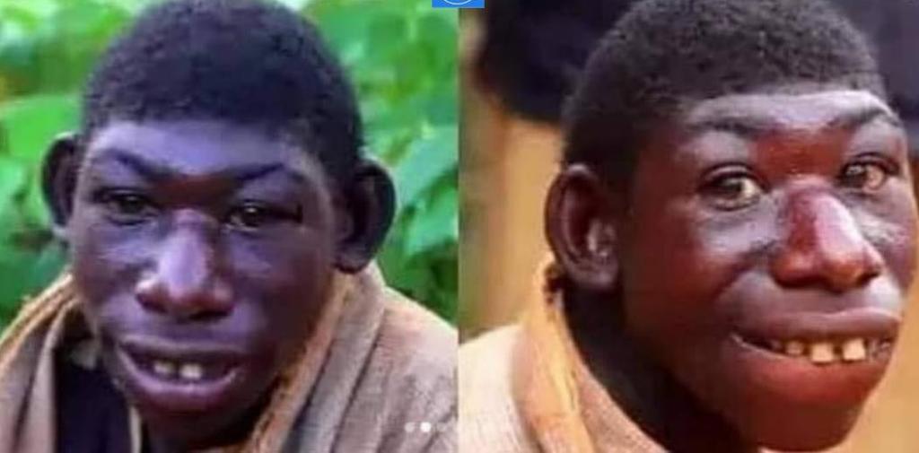 L'apparence physique d'un jeune homme semblable à un animal fait le buzz-VIDEO