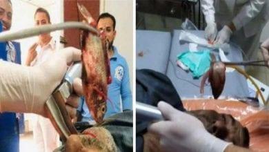 Photo de Égypte: des médecins enlèvent un poisson vivant de la gorge d'un pêcheur-Vidéo