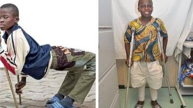 Photo de Togo : l'histoire miraculeuse d'Abel, le garçon handicapé qui marche de nouveau droit