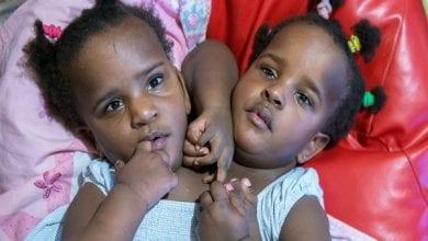 Photo de Marieme et Ndeye: les sœurs siamoises à qui les docteurs avaient donné 4 jours à vivre à la naissance font leur entrée à l'école