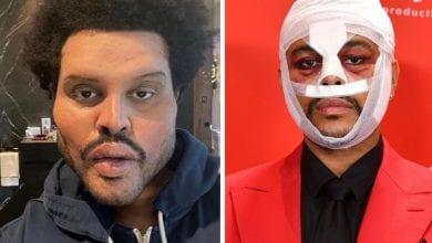 Photo de The Weeknd surprend avec un look bizarre dans son nouveau clip, internet s'inquiète