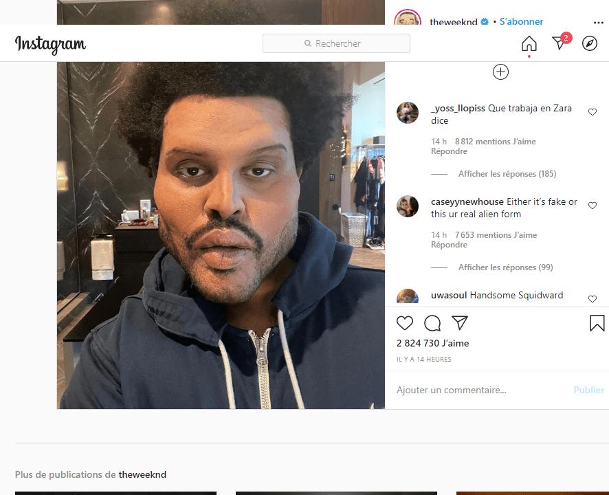 The Weeknd surprend avec un look bizarre dans son nouveau clip, internet s'inquiète